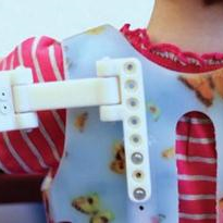 "3D-Printed FDM ""Magic Arms"" help little girl play and hug"
