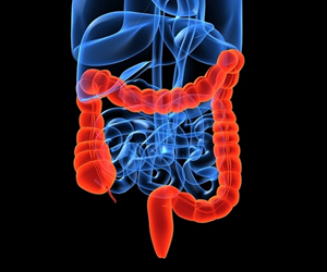 """There are thousands of Australians in apparently good health who have an early-stage bowel cancer or precancerous polyp growing inside them."""