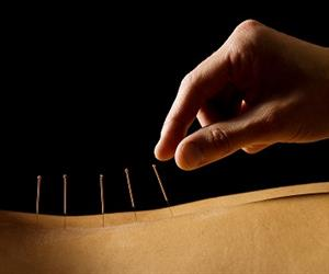 Surface irregularities and bent needle tips have not been entirely eliminated from acupuncture needles during the manufacturing process.