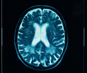 Two compounds may allow specialists greater control over swelling following a traumatic brain injury.