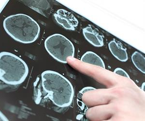 """If you deliver better care through stroke and neurosurgical units, you can reduce mortality."""