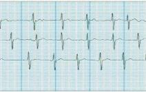 Case study: Device monitors patient's ECG data after catheter ablation